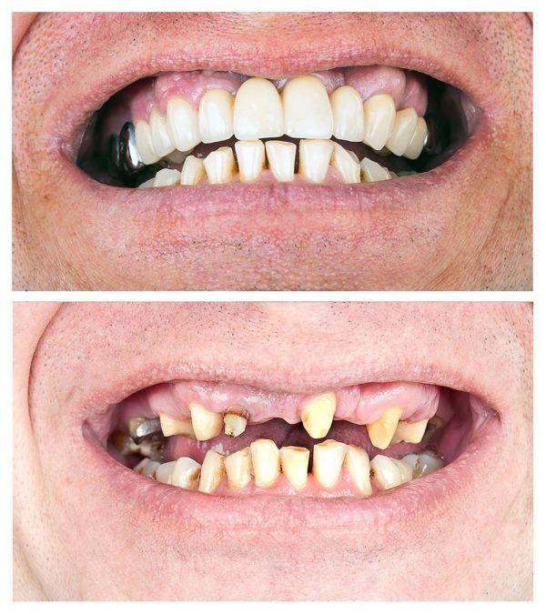 dental-bridge-สะพานฟัน