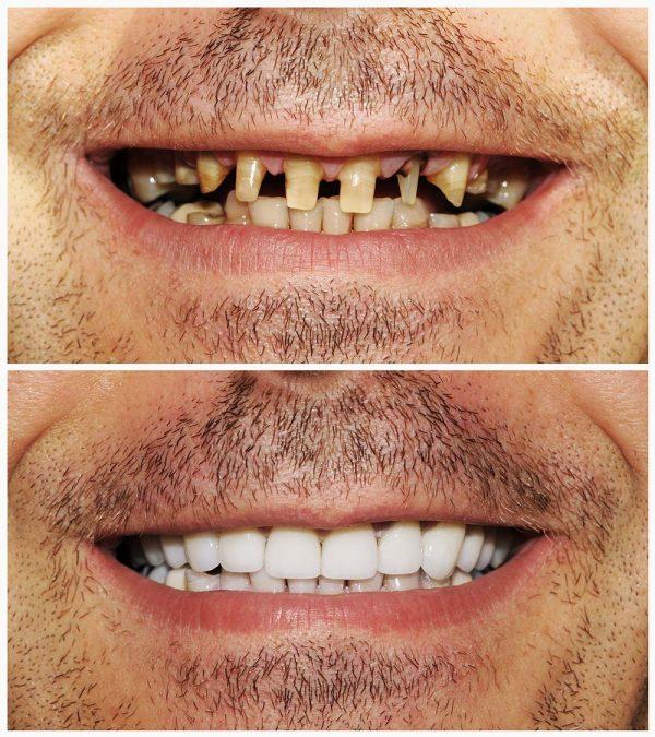 dental-crown-ครอบฟัน