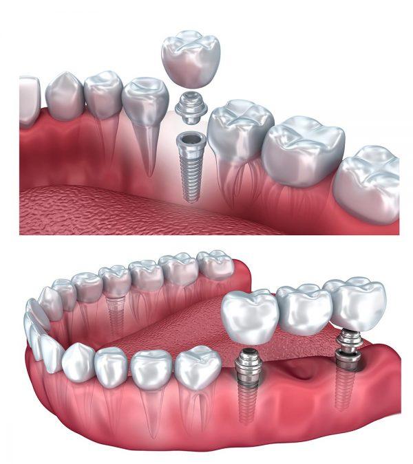 dental-implant-รากฟันเทียม
