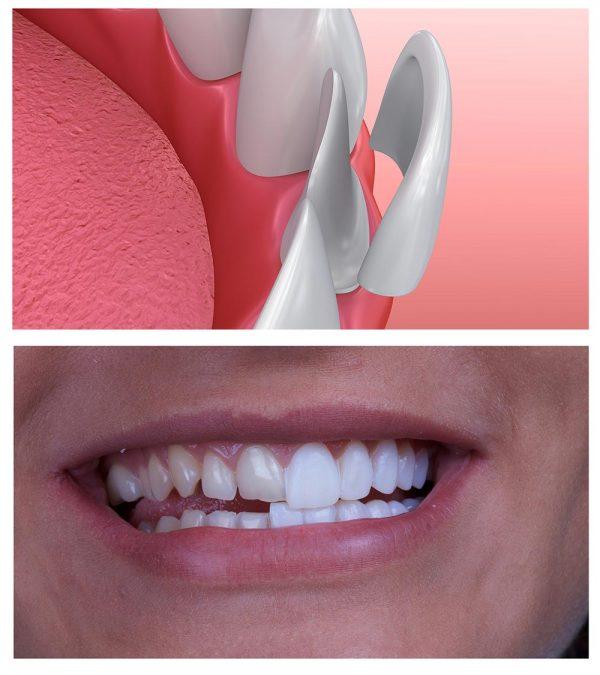 dental-veneer-เคลือบฟันเทียม