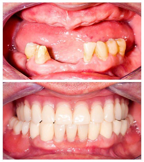 denture-ฟันปลอมถอดได้