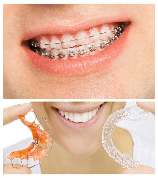orthodontic-จัดฟัน