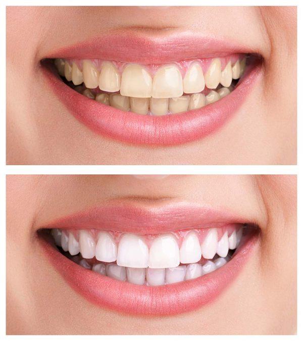 teeth-whitening-ฟอกสีฟัน