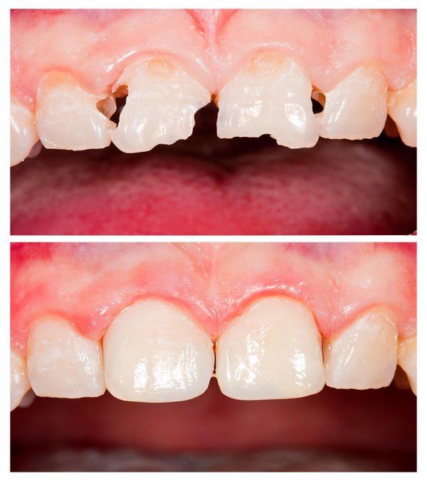 white-filling-อุดฟันสีเหมือนฟัน