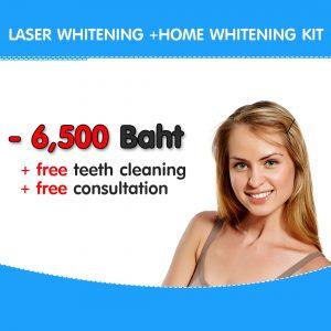 Laser+HOME (2)